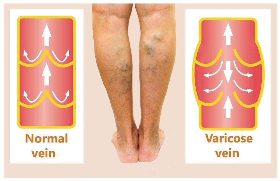 symptom of varicose veins