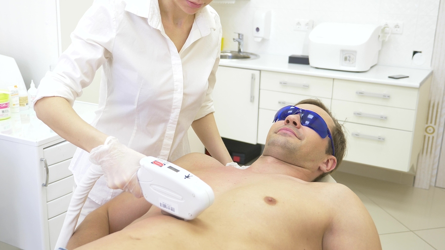male laser hair removal. a doctor in white gloves removes hair from the abdomen and breasts of a man. close-up.