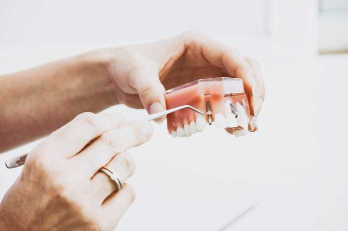 A beginner's guide on maintaining and coping with dentures