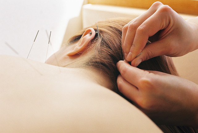 Best Acupuncture in Perth