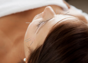 Fusion Acupuncture & Natural Therapies