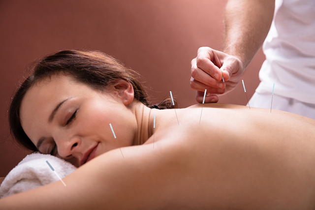 Best Acupuncture in Brisbane