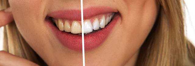 6 foods that naturally whiten your teeth