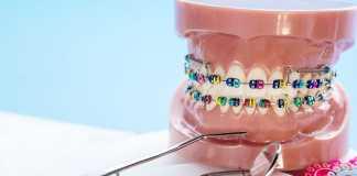 Best Orthodontics in Melbourne