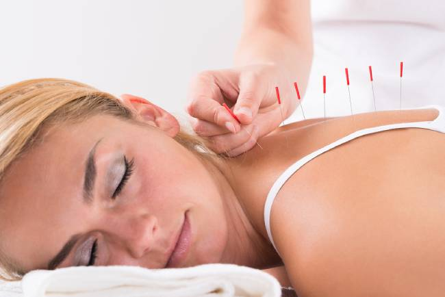 Best Acupuncturists in Newcastle