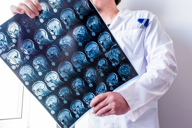Best Neurosurgeons in Gold Coast