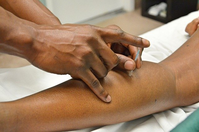 Best Acupuncture in Newcastle