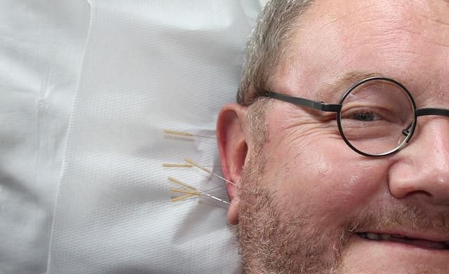 Acupuncture in Perth