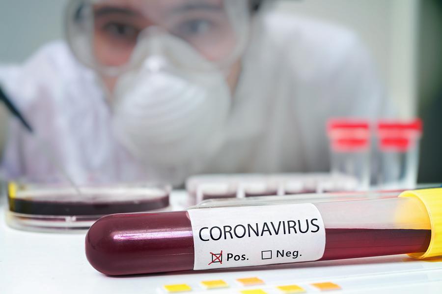 coronaviruse treatment and symptoms