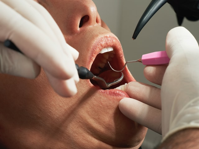 Facts for emergency dentist