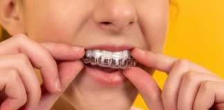 How you can save yourself some money when you are looking into something such as Invisalign
