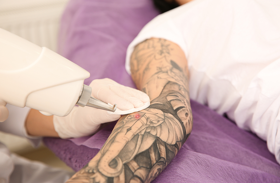 Removing tattoos with lasers